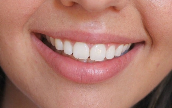 Image Credit : http://someonelikeyou18.blogspot.in/2014/08/smile-brilliant-teeth-whitening-review.html